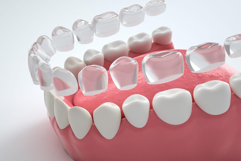 """隐形牙套价格 """"2500美金,惊人超低价"""" ,牙齿矫正,牙齿美容的期待!/纽约牙科诊所/纽约牙齿矫正/纽约牙齿美容/顶尖诊所推荐"""